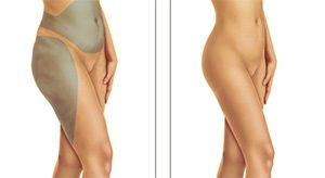 interventi di liposuzione a Firenze
