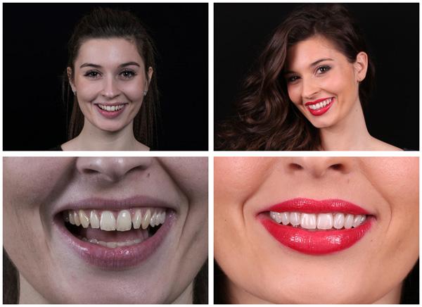 faccette dentali prezzi